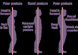 poor-posture standing